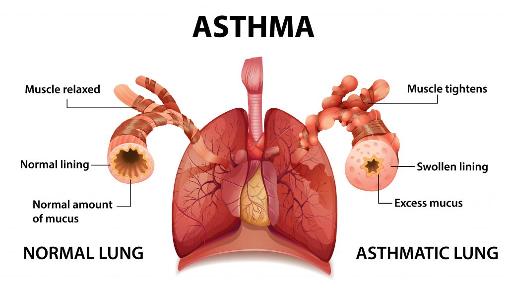 asthma infographic lung comparison